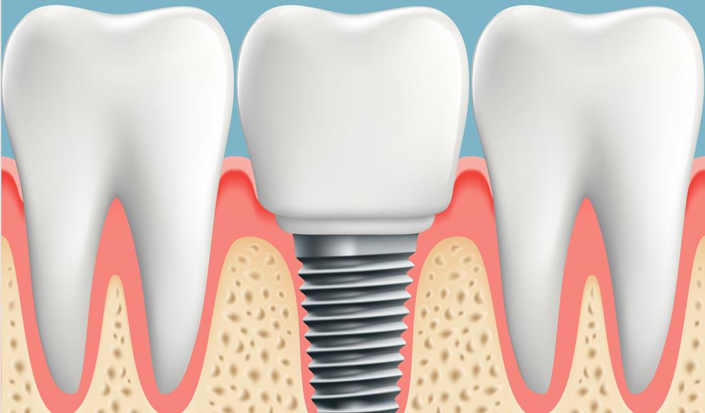 ¿Cuándo decidirse por un implante dental?