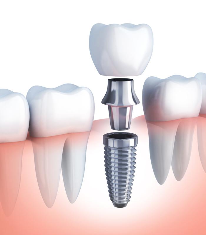 Ejemplo de implante en Cangas
