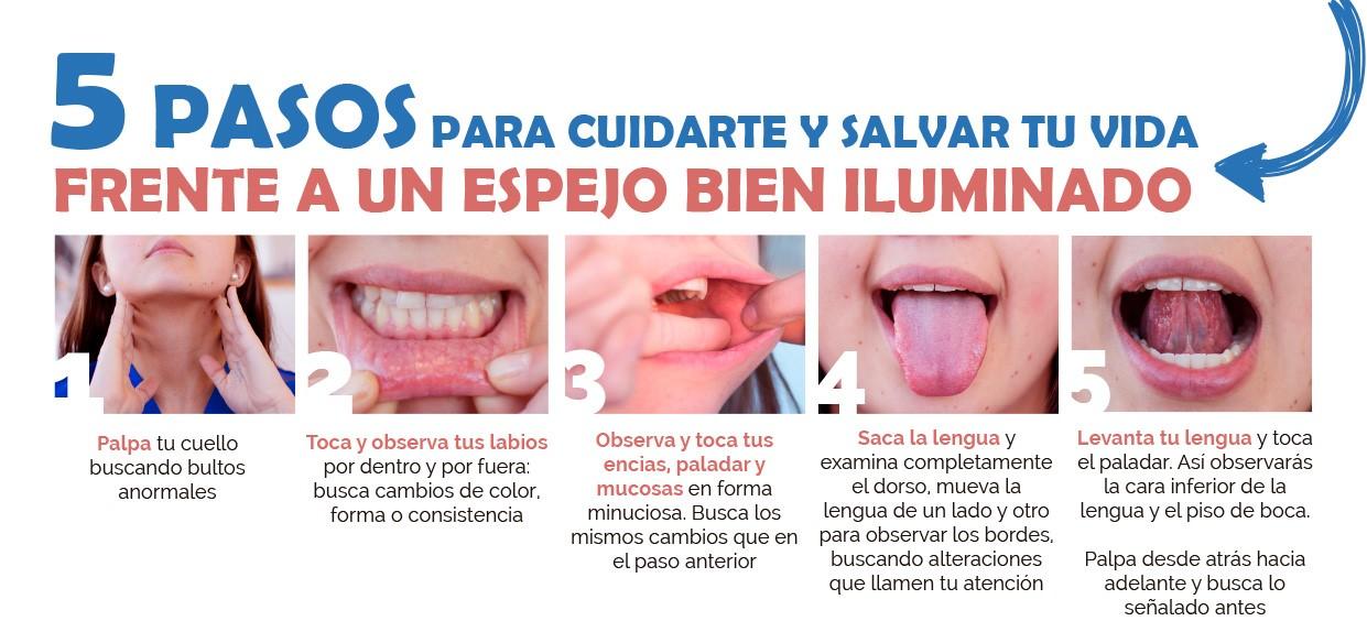 5 pasos para prevenir el cancer oral